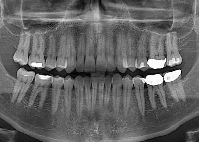 قیمت ۱۶۰ خدمت دندانپزشکی مشخص شد