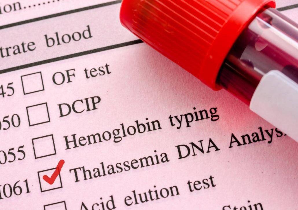 نگرانی از عواقب بی مسئولیتی بیمارستانها در تزریق خون و آزمایش بیماران