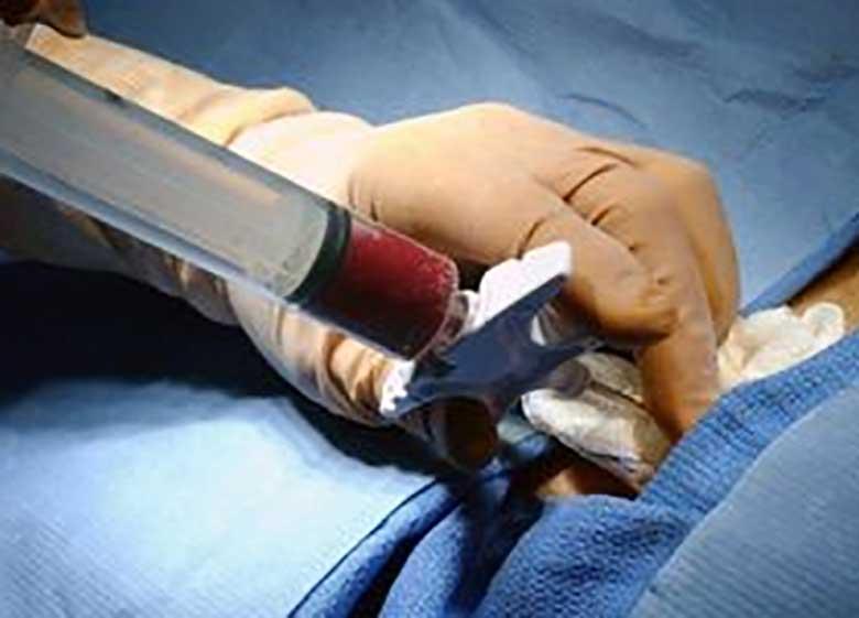 استفاده از استخوان اجساد در جراحی کودکان تهرانی