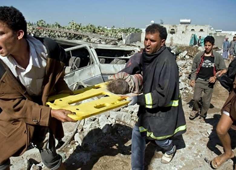 شرم بر آمریکا! چراغ سبز برای ادامه کشتار یمنی ها