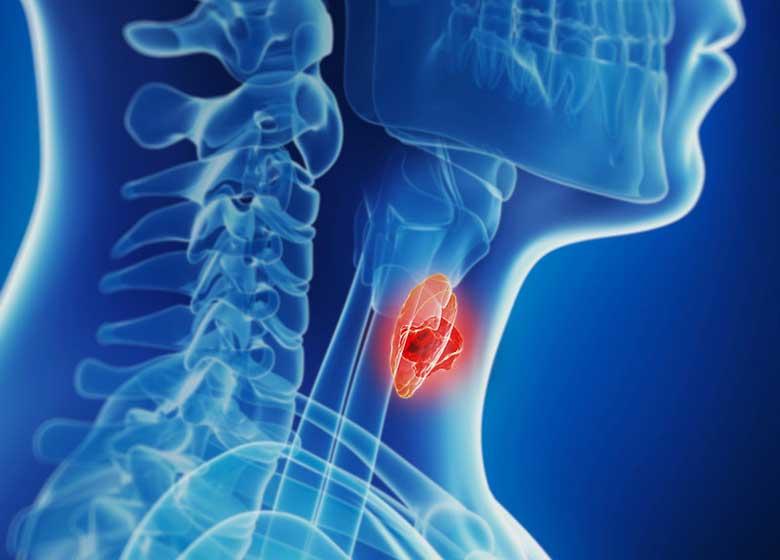 سرطان تیروئید ارمغان تجویزهای بی رویه رادیولوژی/ شیوع تومورهای تیروئید در زنان سه برابر مردان
