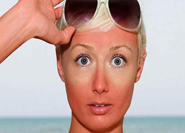 ۸ سپر طبیعی در برابر آفتابسوختگی