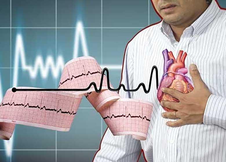 نشانه های ساده سکته قلبی را جدی بگیرید !