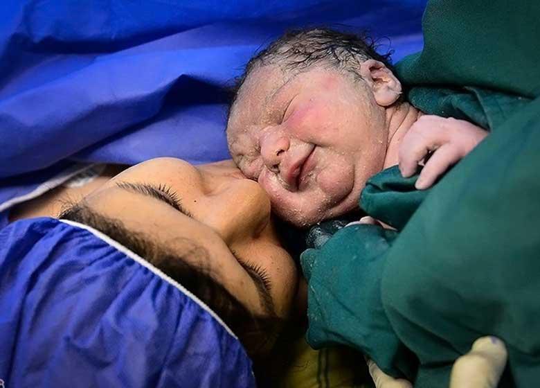 خطر یا بیخطری شامپوهای کافئیندار در دوران بارداری