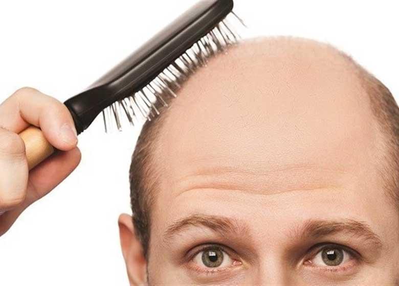 «طاسی سر» خود را با این ماسک ساده گیاهی درمان کنید