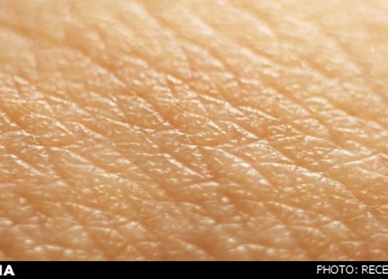 """""""لک و پیس"""" چگونه پوست را درگیر میکند؟"""