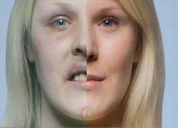 سیگار با پوست و زیبایی ما چه میکند؟