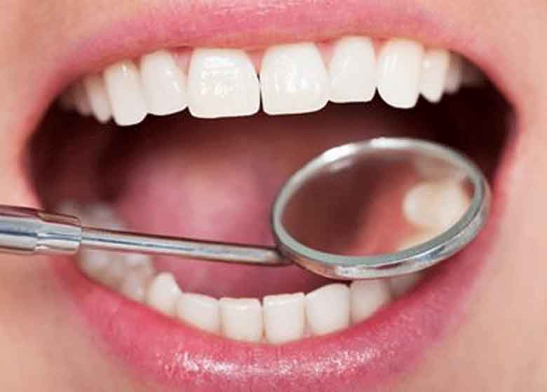 ادامه طرح سلامت دهان دانش آموزان دبستانی تا دوره متوسطه