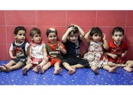 علت کج شدن سر کودکان