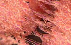 ایمپلنتهای استخوانی با فناوری نانو در بدن جذب می شوند