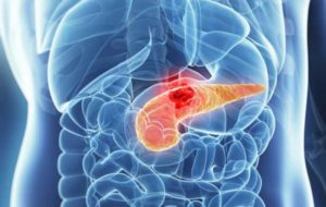 ۵۰ درصد سرطان ها منجر به فوت می شود