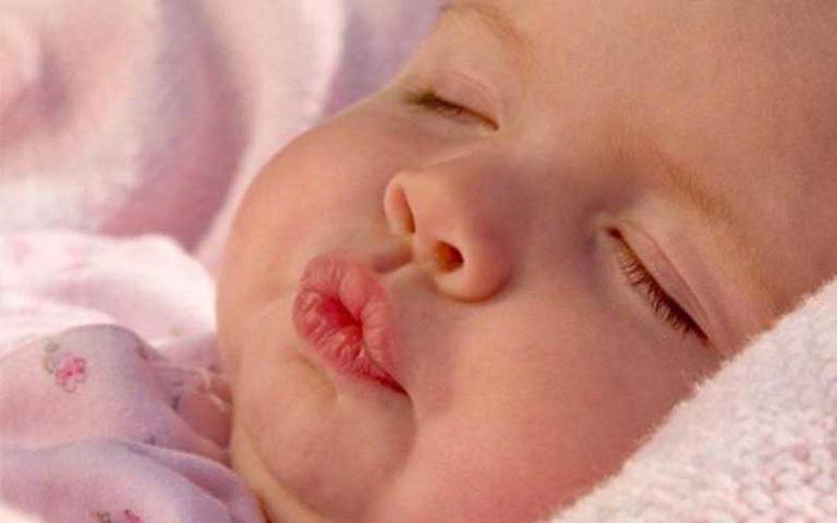 У новорожденного отекла губа