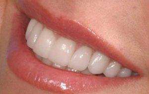 وزارت بهداشت فقط به درمان دندان ها فکر می کند