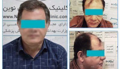 جشنواره 77 روزه کلینیک پوست و مو ایران نوین آغاز شد
