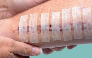 ۱۸۰ میلیون نفر در جهان دچار زخم های مختلف هستند