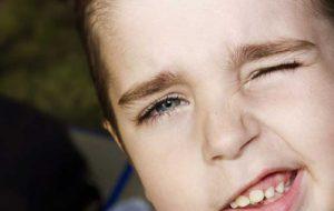 دلیل ایجاد تیک عصبی در کودکان چیست؟