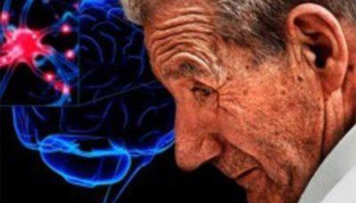 وجود توده های کلسیم در مغز نشانه پارکینسون است