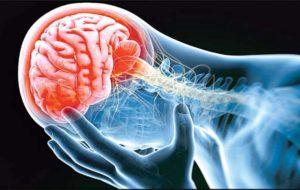 اولین نشانهای که خبر از سکته مغزی میدهد