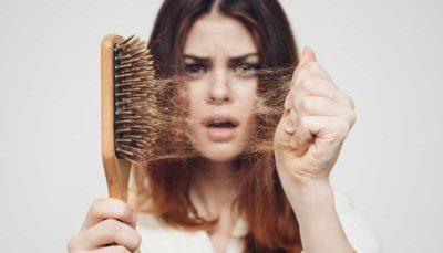 از نوجوانی به فکر جلوگیری از ریزش ارثی موها باشید