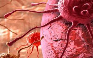 جدیدترین روش های درمان سرطان به وسیله «رادیو تراپی»