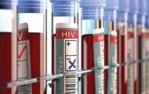 خطر مشکلات قلبی برای افراد آلوده به اچآیوی