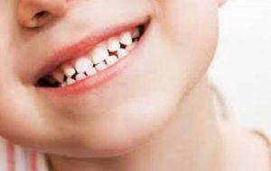 نکاتی که والدین باید در مورد دندان های شیری کودکان بدانند