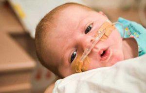 ساخت داروی زجر تنفسی نوزادان در ایران
