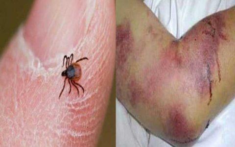 ۷۷ ابتلا به تب کریمه کنگو طی امسال / ۵ فوتی به دلیل این بیماری تا کنون