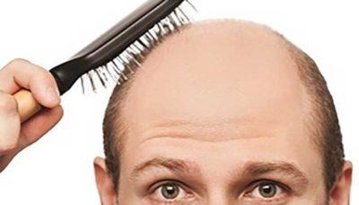 ریزش مو را چه طور متوقف کنیم؟
