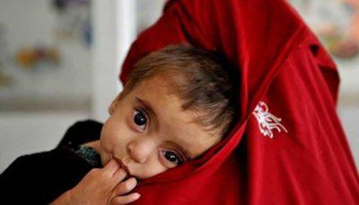 کاهش مرگ و میر کودکان در تمامی نقاط جهان