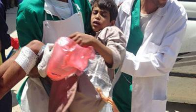 14 63 رژیم سعودی, وزارت بهداشت یمن, سازمان ملل متحد