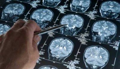 امید به درمان آلزایمر با داروی جدید