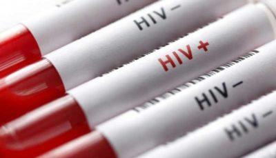 با این ۳ اصل خود را در برابر ابتلا به ایدز واکسینه کنید عدم شناسایی یکسوم بیماران مبتلا به ایدز در کشور بیماری ایدز, ایدز, ویروس HIV