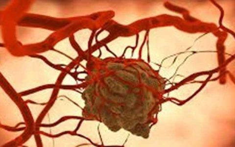 آیا «اشعه» در درمان سرطان مؤثر است؟