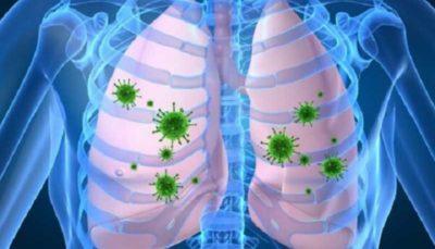 تاثیر تغییرات اقلیمی در افزایش شیوع عفونت های تنفسی عفونت تنفسی, ویروس RSV, تغییرات اقلیمی
