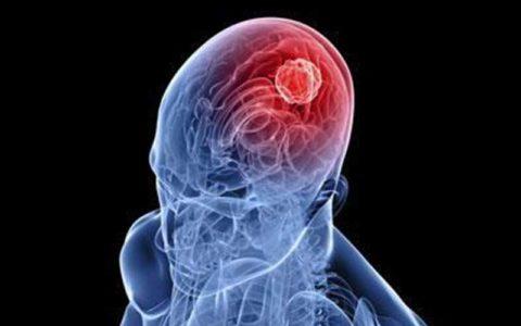 مصرف بیش از حد «اسیدفولیک» منجر به زوال عقل میشود!