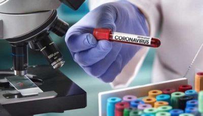 آخرین وضعیت تولید کیت تشخیص کرونا توسط دانش بنیانها کیت تشخیص کرونا, شرکت دانش بنیان, ویروس کرونا