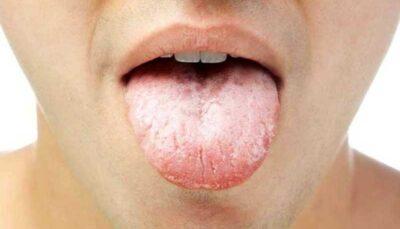 با تلخی دهان در ماه رمضان چه کنیم؟