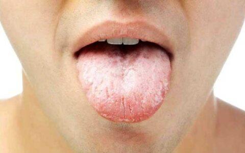 با تلخی دهان در ماه رمضان چه کنیم؟ تلخ کامی, روزهداران, ماه رمضان