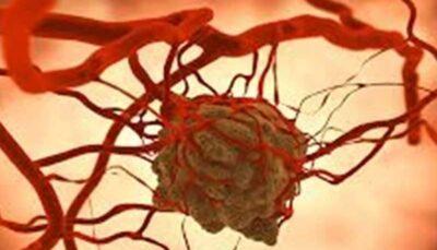 راهی که ابتلا به سرطان سینه را کاهش میدهد
