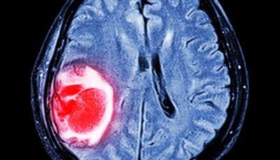 داروی ضدمالاریا به درمان سرطان مغز کمک می کند سرطان, گلیوبلاستوما, مالاریا