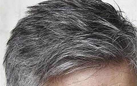 سفیدی مو و روشهای مقابله با آن