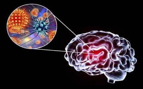 7 نشانه وقتی کرونا به مغز می زند!
