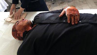 حمله اوباش تهرانی به قهرمان بوکس المپیکی ایران