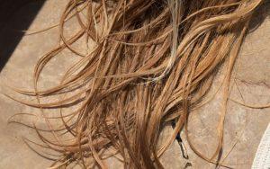 عوامل اصلی ریزش مو در زنان