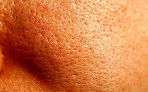 ۷ عادت بد که موجب انسداد منافذ پوست میشوند