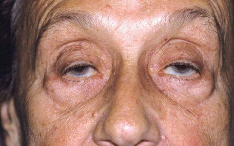 جدیدترین علائم ابتلا به کرونای شدید؛ از فلج شدن صورت تا افتادن پلکها کووید ۱۹, سیستم ایمنی بدن