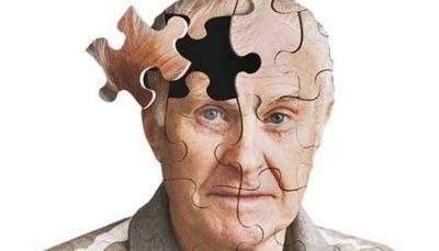عوامل موثر در کاهش خطر آلزایمر آلزایمر, افزایش سن, مغز انسان