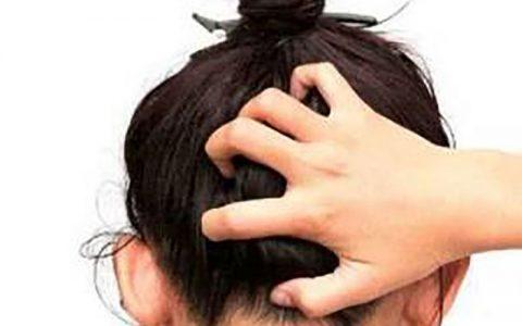علل خارش کف سر و راههای درمان آن خارش کف سر