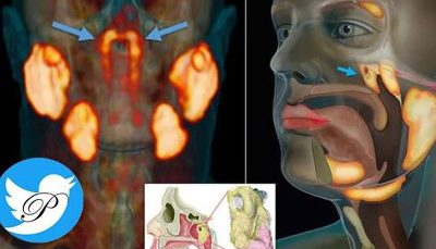 کشف عضو جدیدی در بدن به طور تصادفی غدد بزاقی لولهای, عضو جدید در بدن